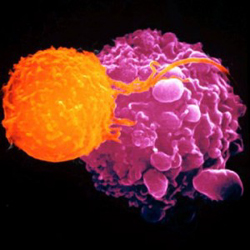 T-cell killing a cancer cell