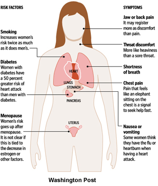 heart attack symptoms in men. Woman Heart Attack
